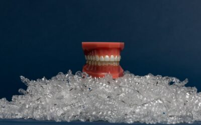 Should I Get Invisalign: The Top 3 Reasons to Consider an Invisalign Treatment