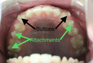 Invisalign Buttons and Attachments